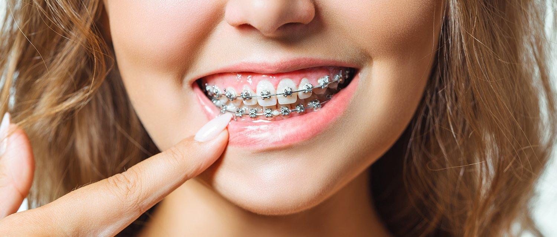Metal Dental Braces