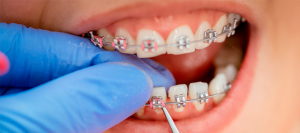 Orthodontic Emergencies and Elastic Bands